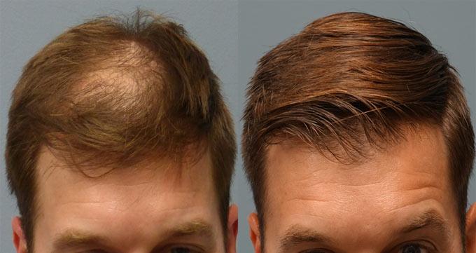 تجربه به ما نشان داده که کاشت مو جای شکستگی با روش FUE موثرتر و موفقتر است