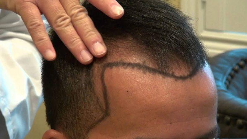 آیا با کاشت مو شقیقه ها میتوان ریزش موی این ناحیه را درمان کرد؟
