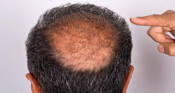 درمانهای ریزش مو