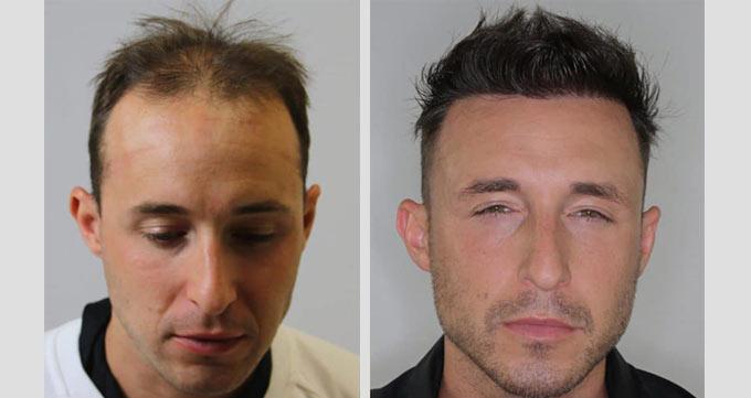 آینده درمانهای ریزش مو