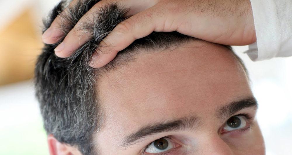کاشت مو چقدر طول میکشد