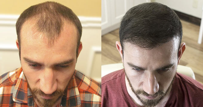 کاشت مو چند جلسه است؟