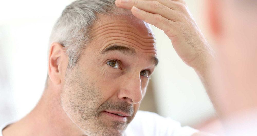 کاشت مو یک روزه