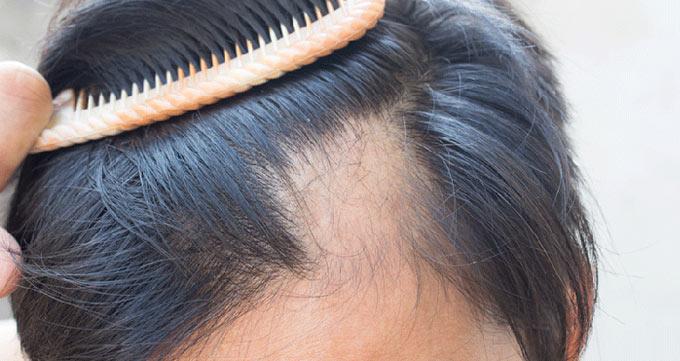 تنها درمان دائم ریزش مو