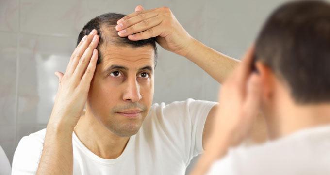ریزش مو تا کجا پیش میرود؟