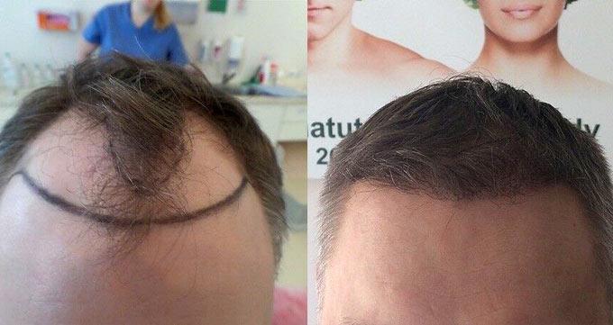 کاشت مو فوری در ناحیه طاس سر