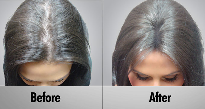 آیا کاشت مو لیزری عملی بدون خونریزی است؟