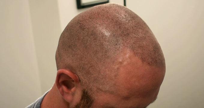 کاشت مو با روش FUE