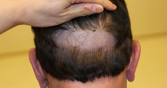 آیا کاشت مو نیوگرافت ارزش انجام را دارد؟