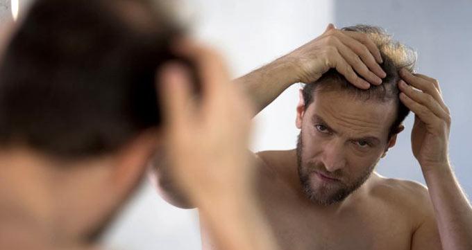 آیا کاشت مو حرفهای درمانی موثر است؟