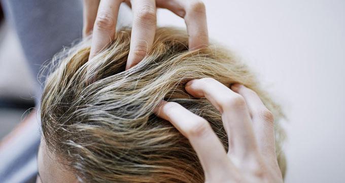 کاشت مو برای خانمها