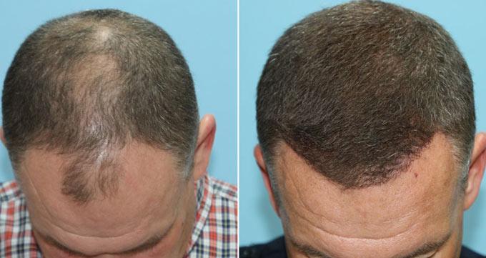 روش کاشت موی مستقیم (DHI)