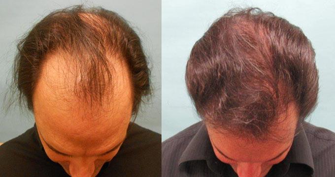 موفقترین نژاد در کاشت مو