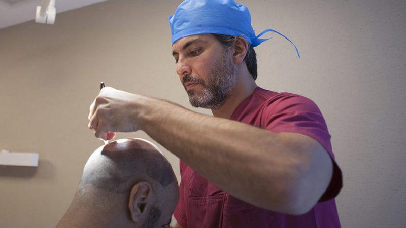معجزه یاقوت کبود در کاشت مو به روش FUE
