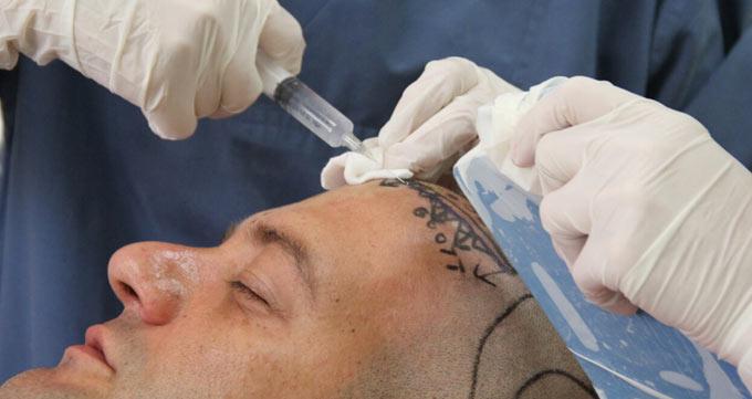 استفاده از یاقوت کبود در کاشت مو به روش FUE
