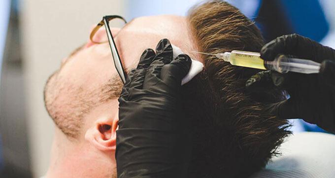 مراحل کاشت مو به روش تکثیر سلول بنیادی