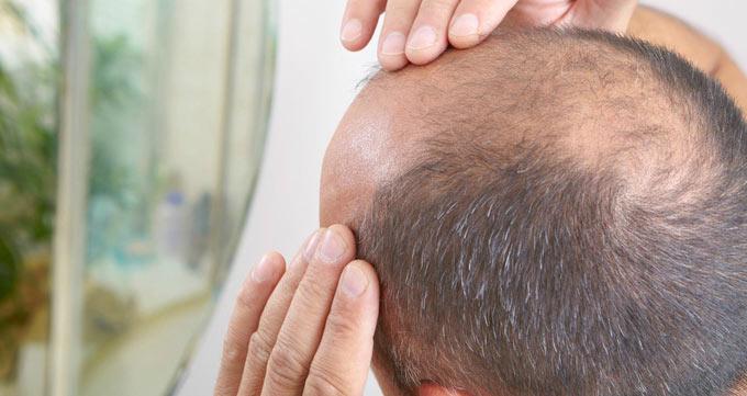 چگونه میتوان با کمک سلولهای بنیادی ریزش موها را درمان کرد؟