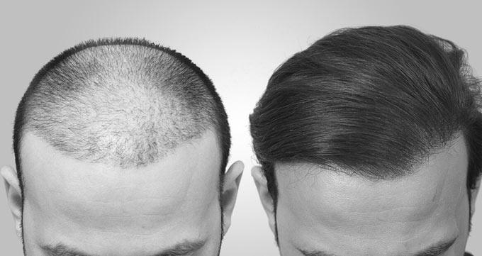 کاشت مو به روش سلولهای بنیادی چیست؟