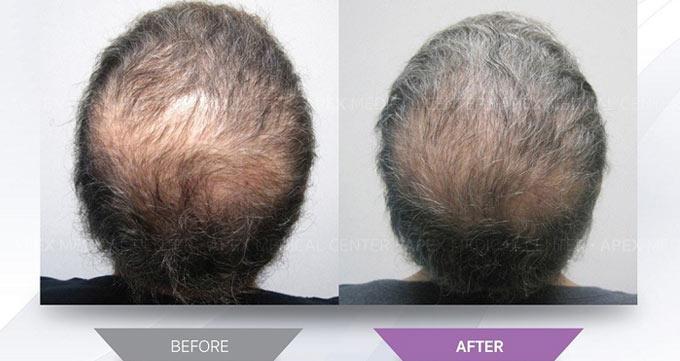هزینه کاشت مو به روش سلولهای بنیادی