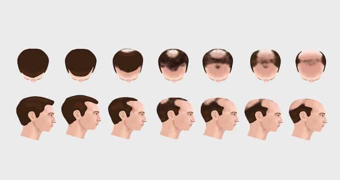 الگوی ریزش موی مشخص