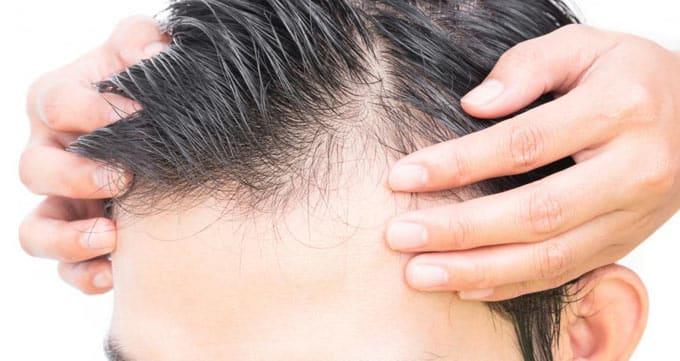میزان فراوانی مو در ناحیه برداشت