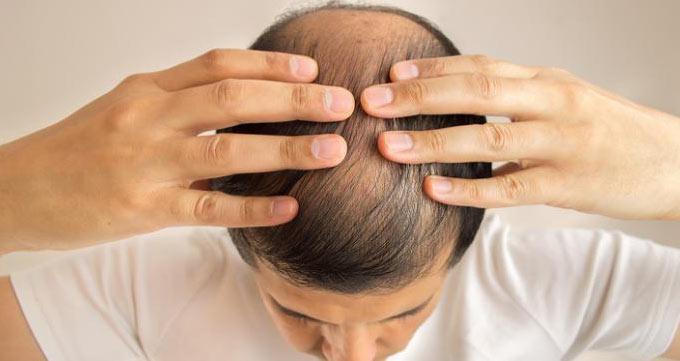 مزایای کاشت مو به روش FUE