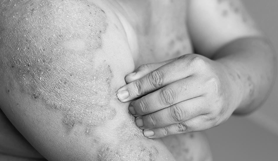 پسوریازیس درمان رایگان کلینیک رخ آرا