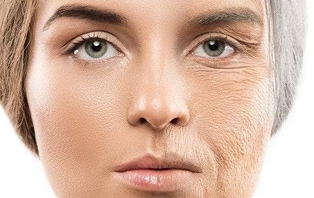 کلاژن سازی پوست صورت