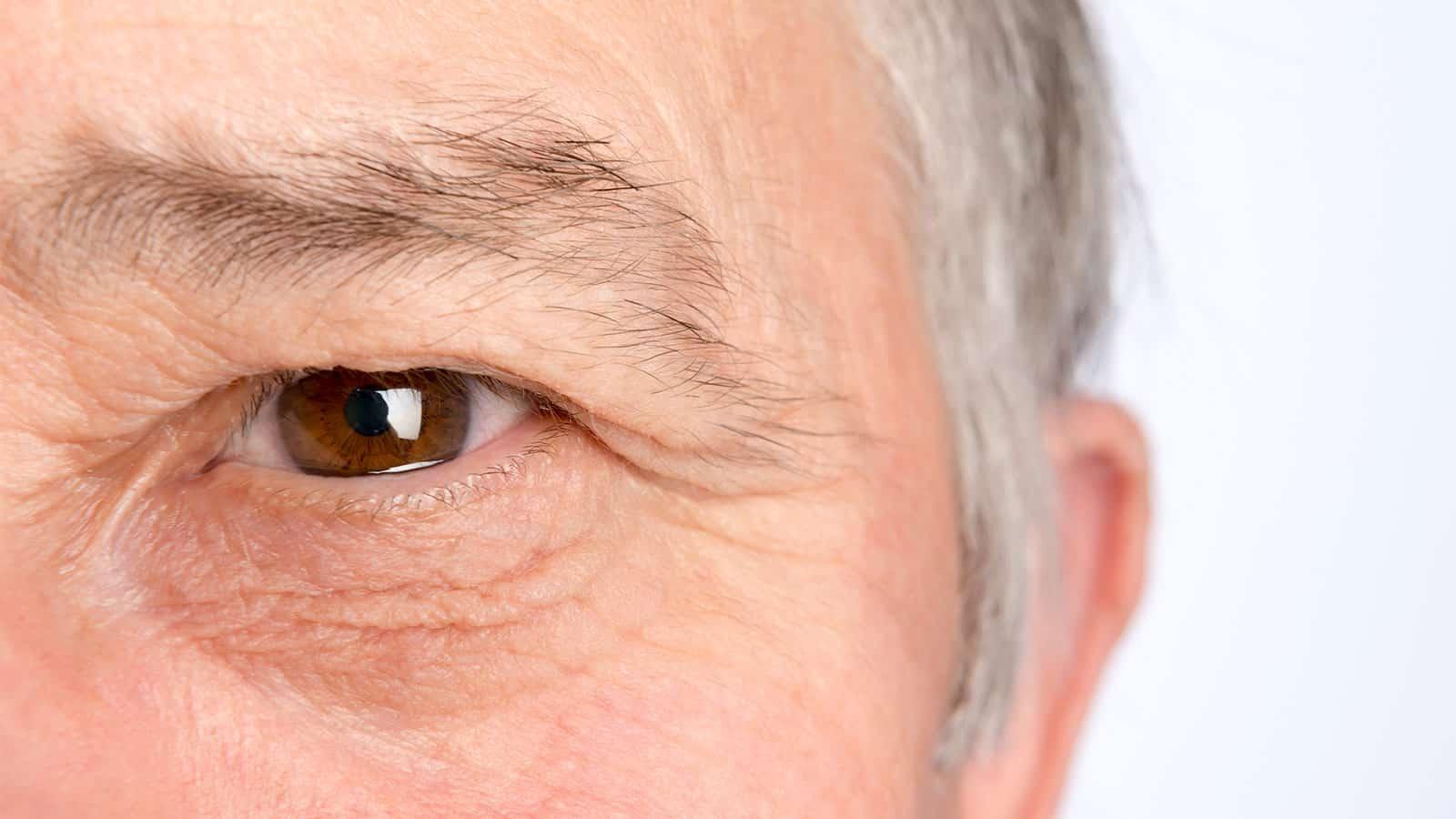 چروک زیر چشم