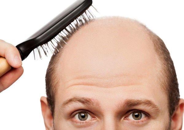 جلوگیری از ریزش مو با کاهش استرس