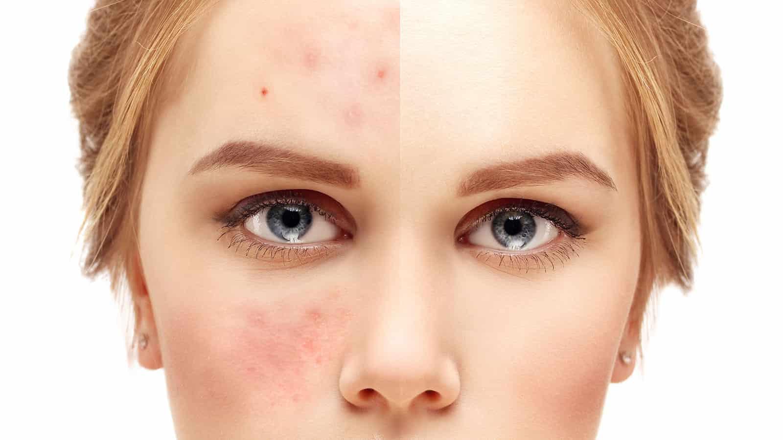 لکههای پوستی