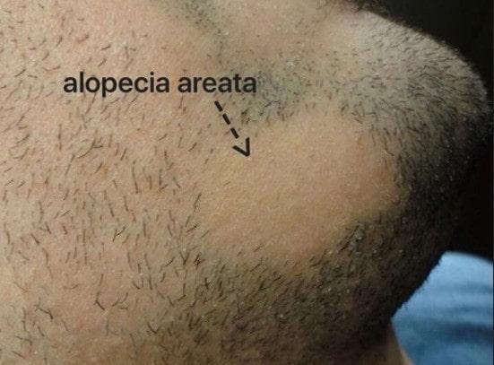 انواع ریزش موی سکه ای