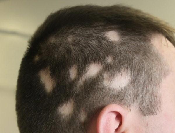 تشخیص ریزش موی سکه ای و حالت های آن