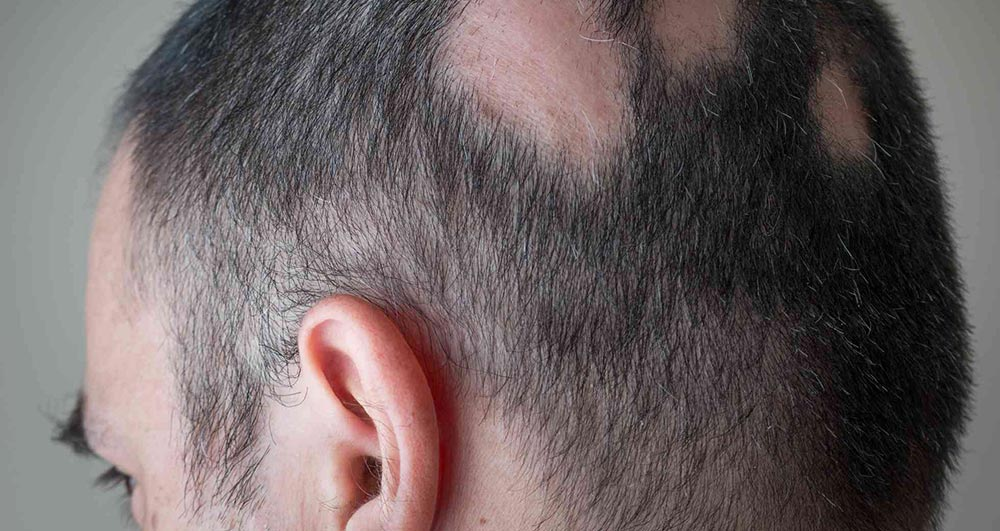 علت ریزش موی سکهای