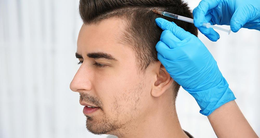 ضربه به سر بعد از کاشت مو سر