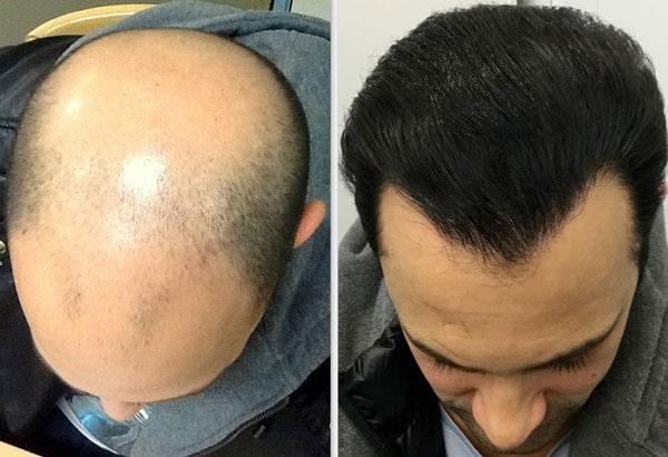ضربه به سر بعد از کاشت مو