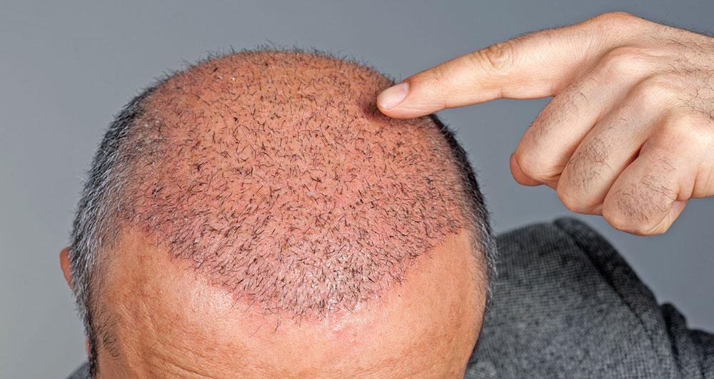 با زخم بعد از کاشت مو چه کنم