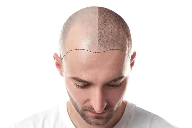مدت زمان درمان زخم سر بعد از کاشت مو