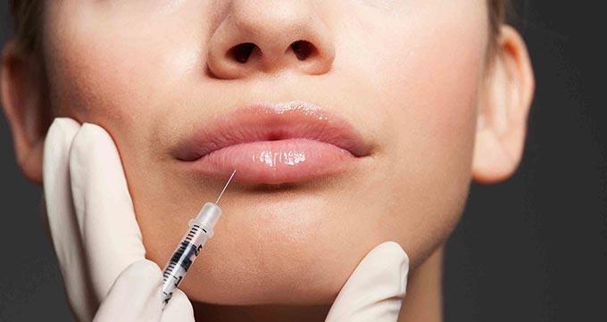 نکاتی که باید قبل از تزریق ژل لب رعایت کنید