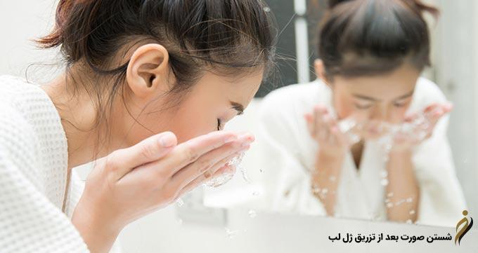شستن صورت بعد از تزریق ژل لب