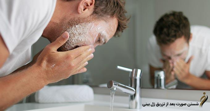 شستن صورت بعد از تزریق ژل بینی