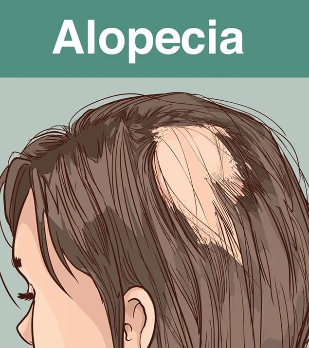 آلوپسی چیست
