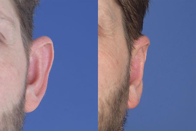 بیماری هایی که با اتوپلاستی یا جراحی زیبایی گوش درمان می شوند