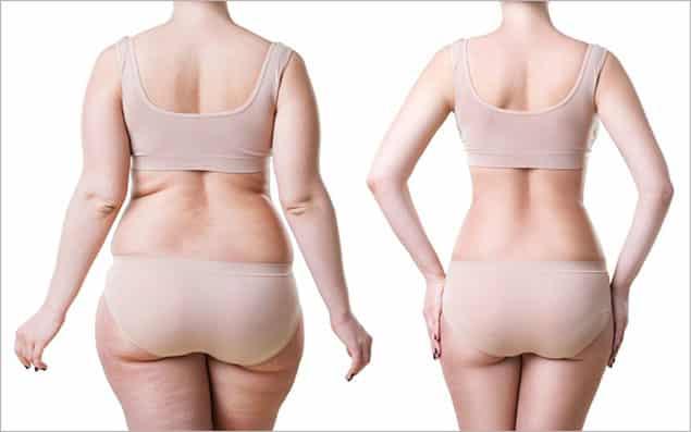 بازگشت چاقی بعد از عمل لیپوماتیک وجود دارد؟