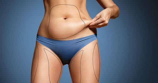 بعد از عمل لیپوماتیک شکم چه کنیم؟