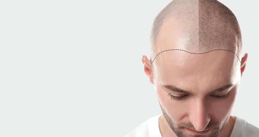 عارضه ی شایع جوش یک اتفاق طبیعی بعد از کاشت مو است