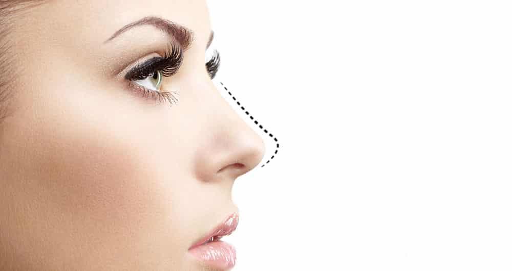 شرایط و ویژگی های مربوط به کوچک کردن بینی