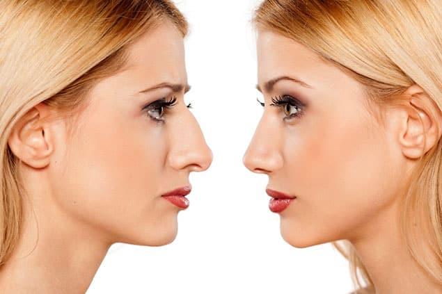 روش های مختلف کوچک کردن بینی