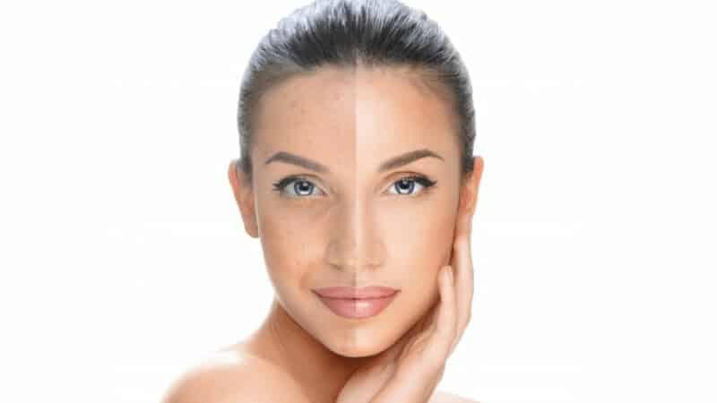 مزوتراپی صورت برای درمان لک تا چه حد موثر است؟