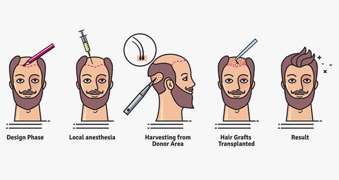 کاشت موی غیرقابل رشد در تحقیقات بین المللی